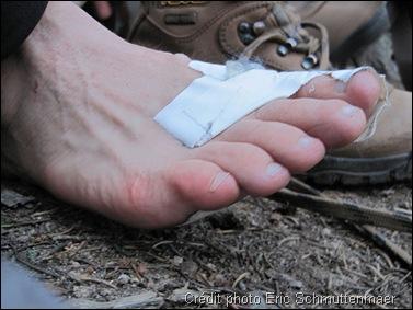 Comment soigner une ampoule au pied ?